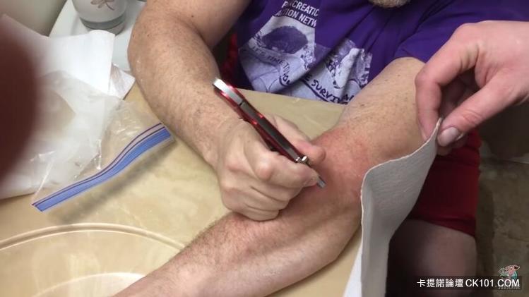 男子決定自行處理手上巨型痘痘…沒想到劃開後「擠不完」的馬鈴薯泥把所有人噁翻!(影)