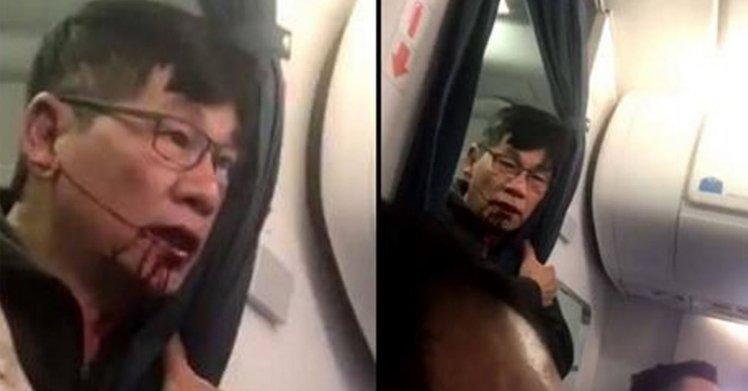 超扯!美聯航「超賣機位」竟強拉乘客下機 男子遭痛毆濺血大喊:只因我是中國人!(圖+影)